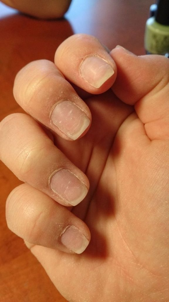 opiłowane ze starego żelu paznokcie